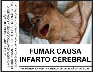 """""""Rauchen führt zum Schlaganfall"""". Hinweis des peruansichen Gesundheitsministeriums. Bild: ANDINA"""